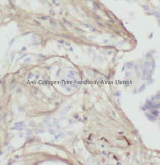 anti- Collagen Type I antibody