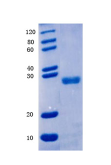 Human Dual specificity protein phosphatase 1 , DUSP1 Protein