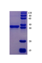 Human Relaxin H2 , RLN2 Protein
